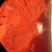 Traumatic Cataract